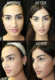 feminizeing hair feminizing the face page 2 of 3 the aesthetic channel