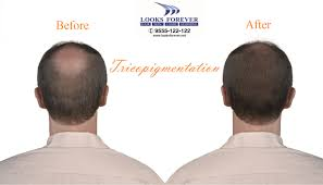 Injection In Scalp For Hair Growth Tricopigmentation Prevents Bald Areas Of The Scalp Dispersed By
