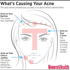 you can tell what s causing your acne by where you out