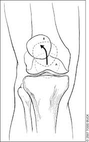 management patellofemoral pain syndrome american family physician