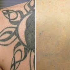 laser tattoo removal qualifications brisbane 1000 geometric