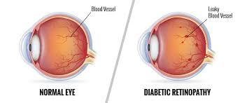 Diabetic Blindness Diabetic Eye Disease Stanton Optical