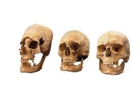 pointy headed skulls in germany may been bulgarian
