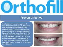 goody bands for teeth orthofill