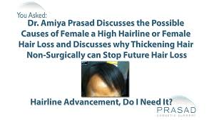 possible causes of a high female hairline and how to stop hair