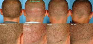 neograft recovery timeline about fue with neograft lewisburg plastic surgery and dermatology
