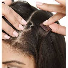 extension in shaved back and side hair 7 easy steps to growing out an undercut finder com