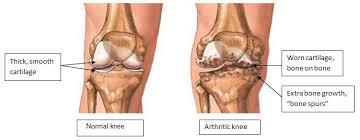 Knee Bony Anatomy Knee Joint Pain U2013 Causes U0026 Treatments