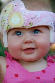 band baby 26 best plagiocephaly helmet ideas images on helmets