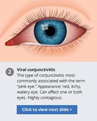 Diseases Of The Eye That Cause Blindness Pink Eye Facts Identify Symptoms And Treat Pink Eye Conjunctivitis