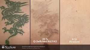 q switch versus picosure for tattoo removal toronto ontario
