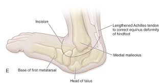 Talus Ligaments 45 Open Reduction Of Dorsolateral Dislocation Of The
