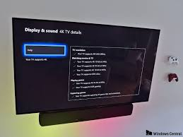 the difference between hdr10 and dolby vision as relates to xbox