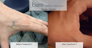tattoo removal technology bare tattoo removal