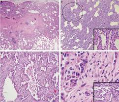 lepidic pattern meaning figure 3 case based assessment of invasive histology in a lepidic