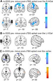 asymmetric interhemispheric transfer in the auditory network