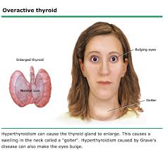 I Am Sofa King We Todd Did by You Are Here Home Gt Hyperthyroidism And Graves Disease Your