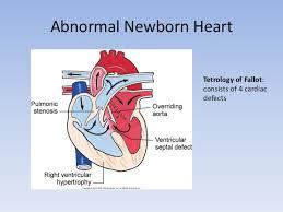 Anatomy Of Human Heart Pdf The Fetal And Newborn Heart Pdf