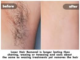 how much does laser hair removal cost on back laser hair removal costs st louis laser liposuction center