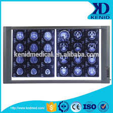 x ray light box for sale cheap price led x ray film viewer x ray viewing light box buy mri