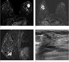 mri guided biopsy breast second look ultrasonography for mri detected suspicious breast