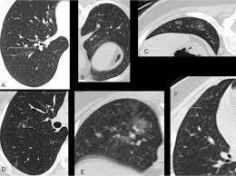 unrecognized lung disease in classic rett syndrome chest