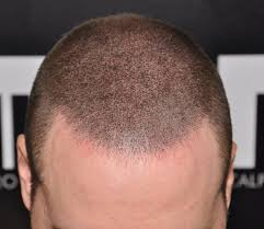 hair buzzed and growing out stages pics keeping your hair longer after scalp micropigmentation his hair