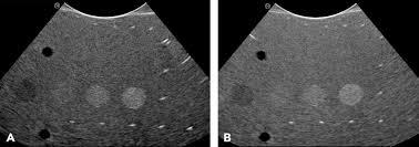 small animal abdominal ultrasonography part 3 basics of imaging