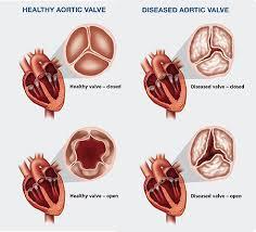 Anatomy Of Heart Valve Valvular Heart Valve Disease Cardiovascular