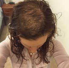 hair styles for women with center bald spots hair loss and trichotillomania how to cover up bald patches