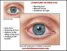 What Causes Eye Pain And Sensitivity To Light Www Lightneasy Net