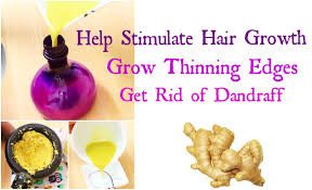 Dandruff And Hair Loss Natural Cure For Dandruff And Hair Loss Om Hair