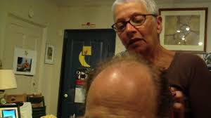 hair cuts for guys who are bald at crown of head bald guy 037 haircut youtube