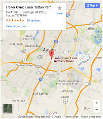 Map Of Austin Tx Eraser Clinic Laser Tattoo Removal Austin Tx