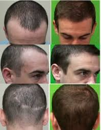 finding the best fue hair transplant doctor in the world