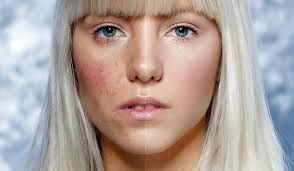 Blind Pimples On Chin Skin Care Acne And Spots What Causes Random Skin Breakouts