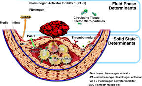 pathophysiology of coronary artery disease circulation