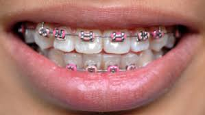 nickel free braces types of braces houston tx greater houston orthodontics