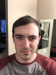 how to manage a ver low hairline the 25 best receding hairline styles ideas on pinterest