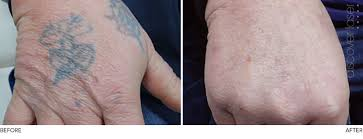 laser tattoo removal aesthetic clinic burnley lancashire