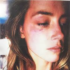 Heard Amber Heard Accuses Johnny Depp Of Domestic Violence With Graphic