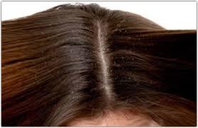 prurito testa e corpo dermatite seborroica cuoio capelluto cause e rimedi