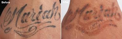 laser tattoo removal before and after black skin the best tattoo