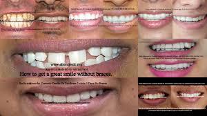 thrilling figure teeth whitening laser glorious teeth whitening