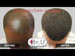 prescreened hair transplant physicians the 25 best wayne rooney hair transplant ideas on pinterest