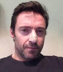 Hugh Jackman Hugh Jackman Shows Bandaged Nose After Cancer Treatment The