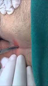 pilonidal cyst location pilonidal cyst et al