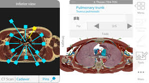 3d Human Anatomy Atlas Human Anatomy Atlas 2018 Complete 3d Human Body On The App Store