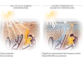 eucerin acne prone skin medicinal treatments for the symptoms
