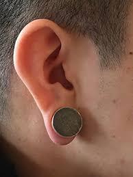 pressure earrings ear keloid compression earring certified therapist in